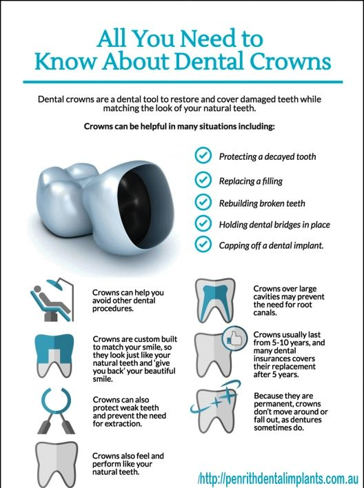 Pin By Adentalclinic On Dentist Dental Dental Crowns Dentistry