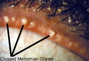 Causes of blepharitis