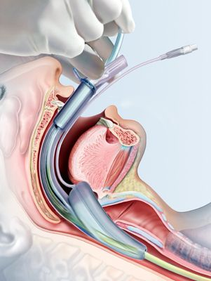 medical illustration of The illustration shows the correct positioning of the new Supreme Laryngeal Mask Airway. It was created for the device manufacturer.