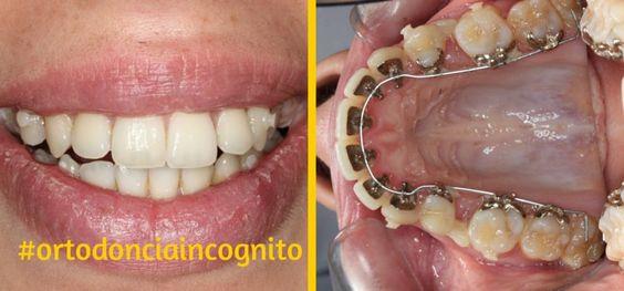 ¿Sabes por qué elegir la Ortodoncia Lingual Incógnito? La ortodoncia lingual de Incógnito es actualmente el sistema más avanzado y estético de ortodoncia y en Clínica Ferrus & Bratos somos especialistas en Ortodoncia Invisible para adultos. ¿Quieres saber más acerca de este tratamiento? Aquí te lo contamos.