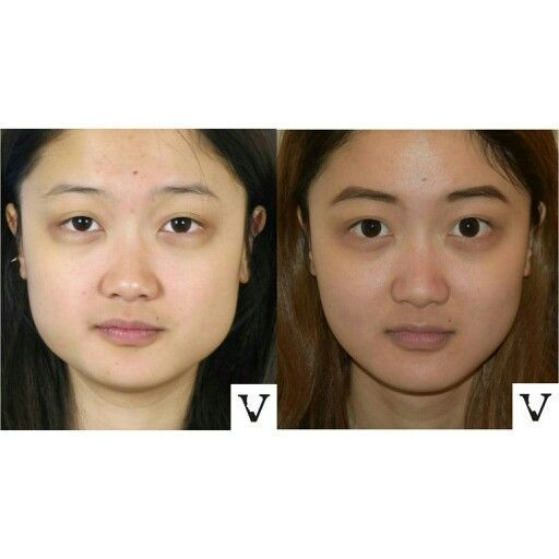 Fat Loss Injections In Face