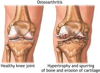 How To Treat Osteoarthritis With Natural Remedies, Eat Anti-Inflammatory Foods : Researchers have labeled a number of food items, which are anti-inflammatory in nature and helps in relieving osteoarthritis pain to some extent. Garlic, onions, mustard, celery, parsley, lemon and watercress are some anti-inflammatory food items.