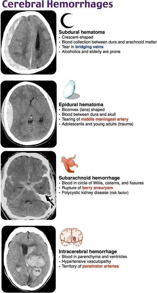 Head Cerebral Haemorrhage Medical Anatomy Emergency Medicine