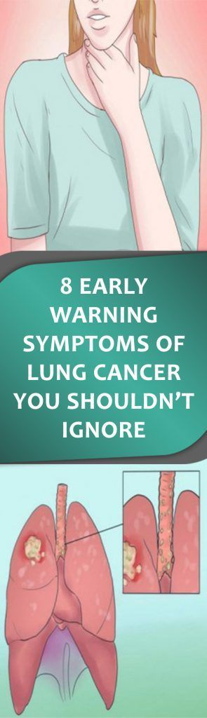 Lung cancer is the second most common type of cancer and it affects both men and women of all ages. In fact, up to 27 percent of all cancer deaths in United States are caused by this type of cancer.
