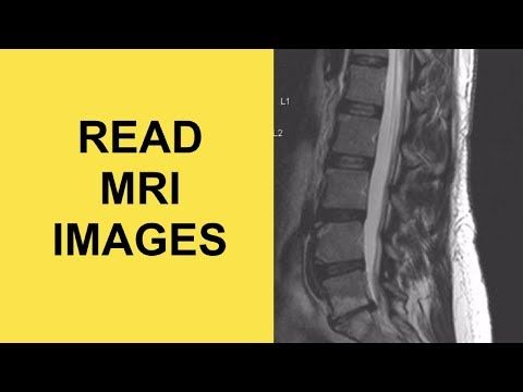 Pin On How To Read An Mri Of The Lumbar Spine