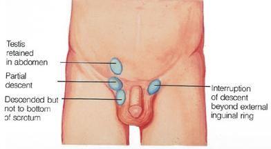 cough drop sex position