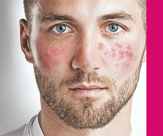 Rosacea patients experience frequent bouts of breakouts Types - outdoor k amp uuml che selber bauen
