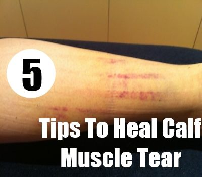 How To Heal Calf Muscle Tear