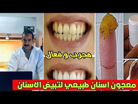 Pin On تبييض الاسنان