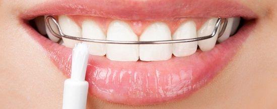 تقويم الاسنان التجميلي