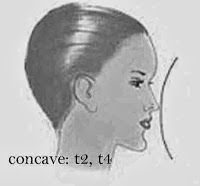 2: Concave Profile - Has a Prominent forehead and chin with other features receding inward - BEST HAIR STYLE: hair from the nape upward movement