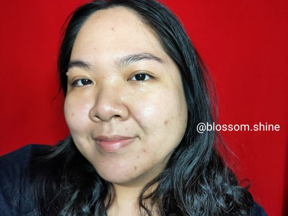my bareface before using Bee Botanic Propolis Facial Wash Gel