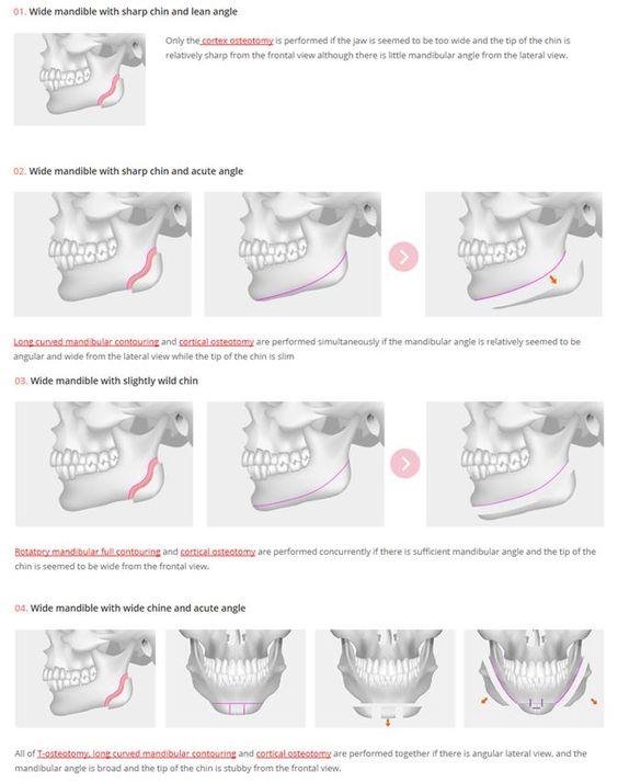 [Facial contouring - V-line Mandibular Contouring] Diverse combination according to patient own facial shape, Plastic surgery, Cosmetic surgery, V-line surgery, V-line osteotomy, facial contouring, jaw reduction, shin surgery, genioplasty, plasticsurgerykorea, seoul