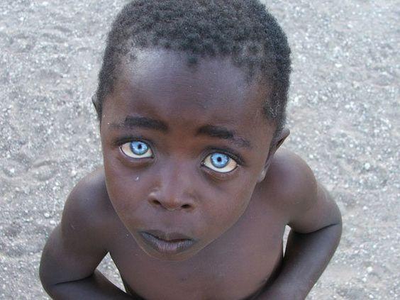 Crédito foto: Vanessa Bristow    El niño con ojos de zafiro