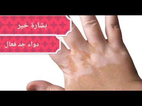 رجيم سريع في رمضان Ramadan Diet Health Fitness Nutrition Health Facts Food