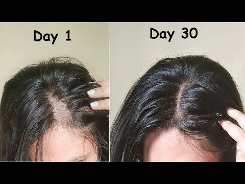 Thin Hair To Thick Hair In 30 Days Carrot Flaxseed Aloevera Gel For Hair Growth Hair Growth Home Remedies Long Hair Treatments Hairstyles For Thin Hair