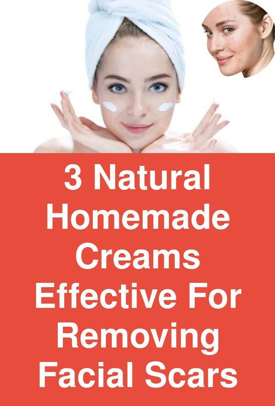 3 Natural Homemade Creams Effective For Removing Facial Scars Scars are the disgusting condition of the skin caused due to the acne and pimples. Try these remedies with natural ingredients to get a soft and clear skin.