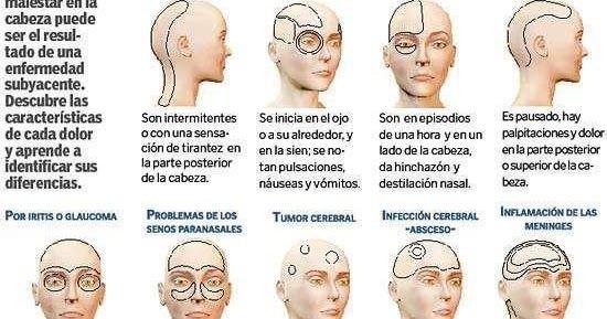 Puedes tener migrañas en la parte posterior de tu cabeza