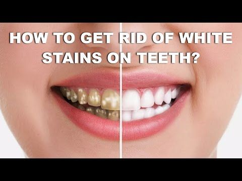 c4c309f9c252309b5e153a6b7f3de161 - How To Get Rid Of White Spot Lesions On Teeth