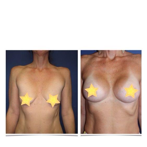 free breast implant