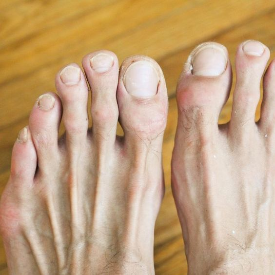 How To Get Rid Of Toenail Fungus Fast | Health Tips, Health And