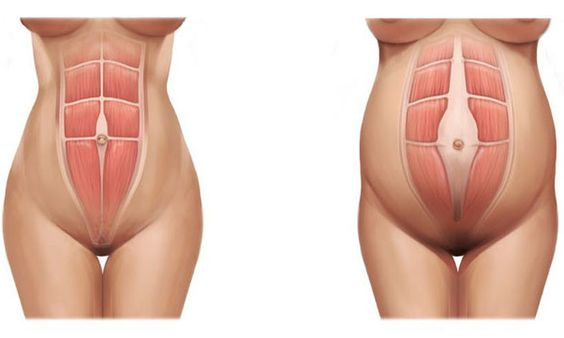 Healing Abdominal Muscles After Pregnancy – Midwifery Traditions: