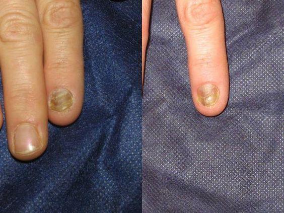 foto antes y después de 1 sesión de 2 minutos.   Before and after 1 session of 2 minutes