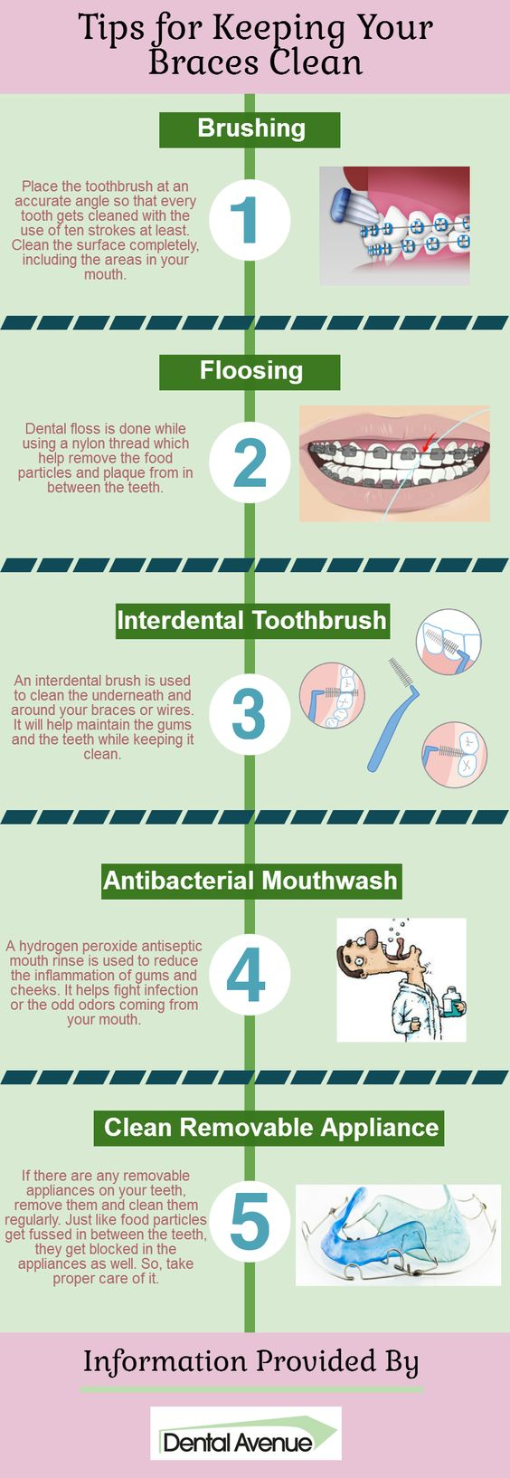 The way, keeping your teeth clean and healthy is important, it is also important that you take proper care of the braces applied to your teeth. There are several things that can be done at regular intervals. Go through this infographic to know what all it includes, keeping the braces clean.:
