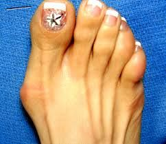 Oh dear Bunions - ouch looks painful!! if you would like to be able to wear shoes, sandals and boots again without being in pain take a look at Meanfeet's range of Wide Fitting Bunion Relief Footwear at www.meanfeet.com