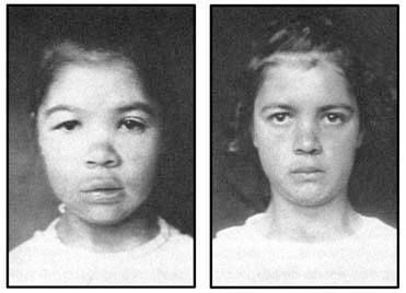 Before and after treatment for hypothyroidism