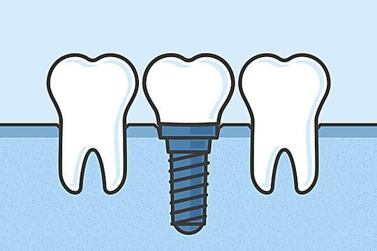 Breakthrough Dental Implant Technology Here Is What New Dental Implants Should Cost You In Bengaluru Style Shopping Styles Outfit Pre Mandala Paisley Tips