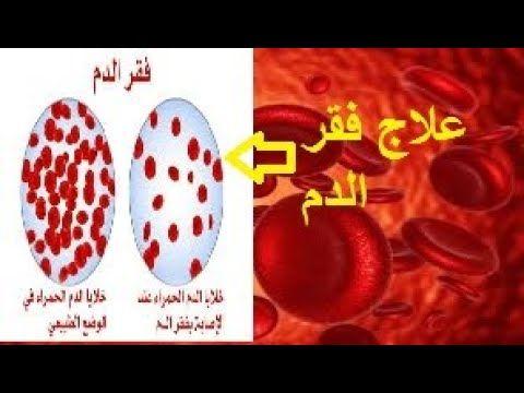 وصفات وأغذية مهمة تزيد الدم و تخلصك من فقر الدم يجب تناولها Blog Posts Blog Novelty