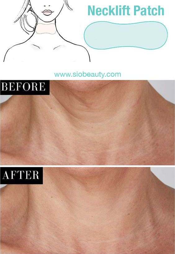Sio Necklift Neck Lift Skin Bumps Neck Wrinkles