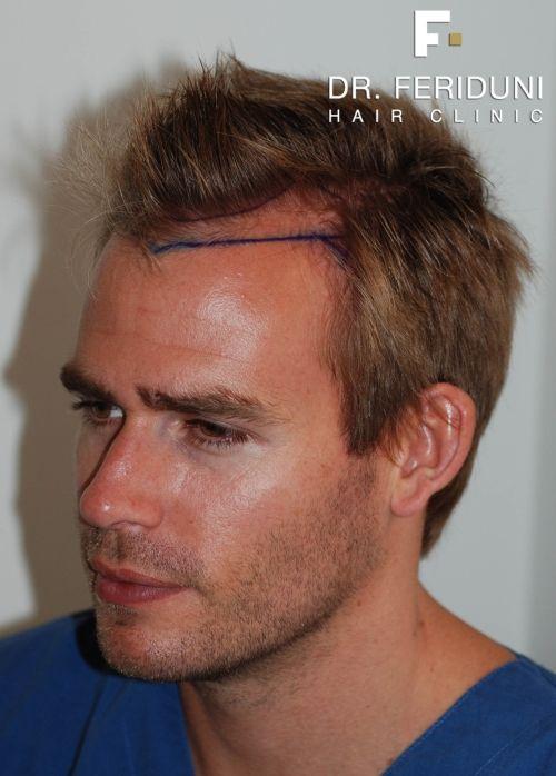 Frisur Geheimratsecken Dunnes Haar 2021 Frisur Geheimratsecken Frisur Wenig Haare Frisuren Rundes Gesicht