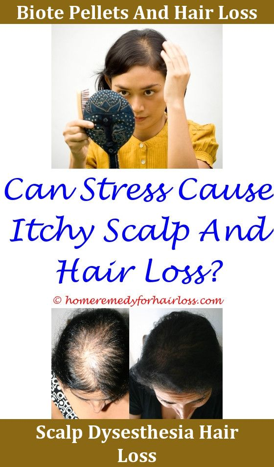 Causes Of Sudden Hair Thinning Hair Loss Control Hair Loss Men Hair Loss Reasons