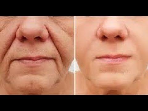 بوتوكس طبيعي يزيل تجاعيد 20 سنة في 3 أيام ستختفي التجاعيد حتى لو سنك 70 سنه ستعودي كانك في سن 20 Youtube Beauty Skin Care Routine Skin Face Massage