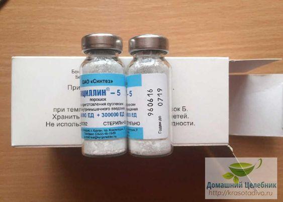operații de la varicoză pe picioare