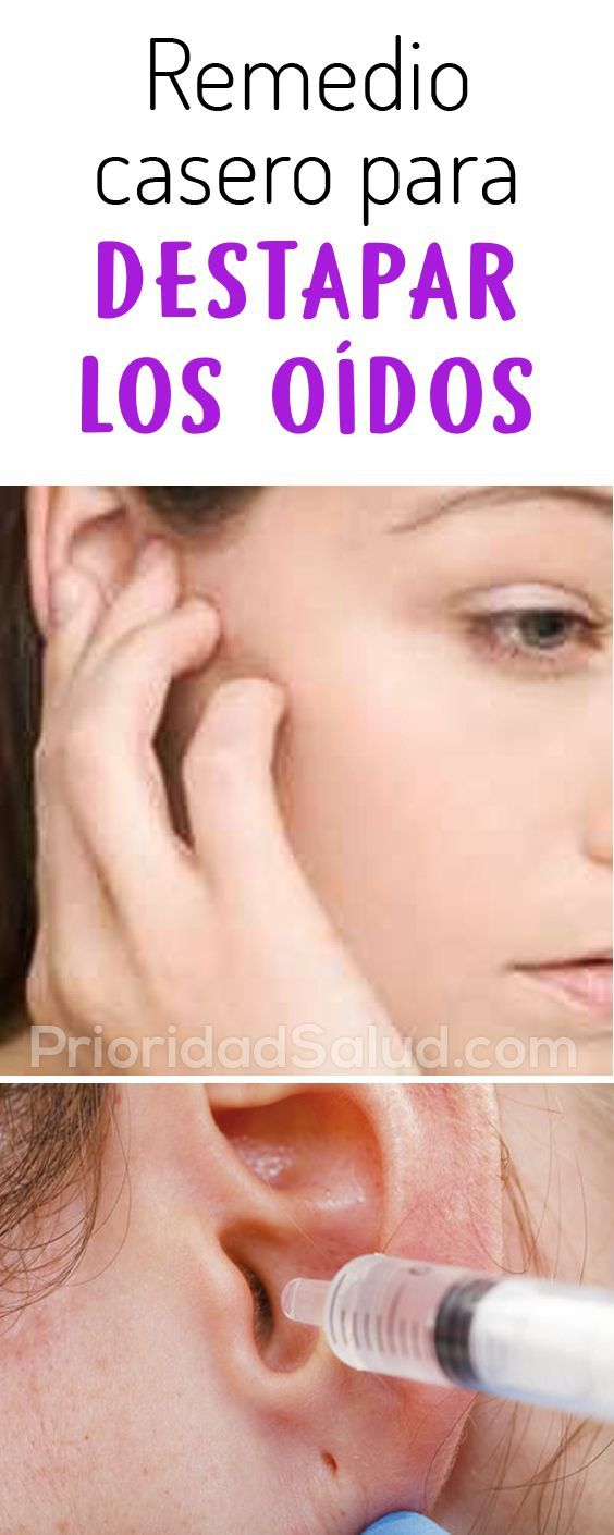 remedio casero para destapar el oido por agua