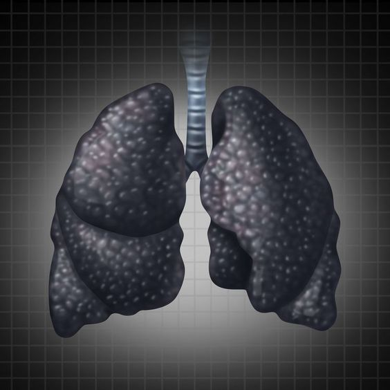 How Much Do You Know About Lung Cancer?