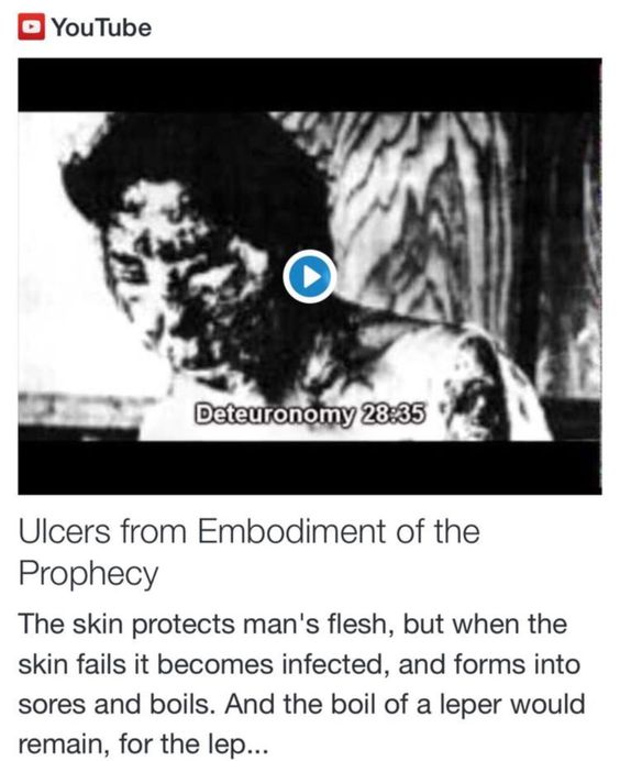 Ulcers from Embodiment of the Prophecy http://www.andrewtheprophet.com/11301/260719.html