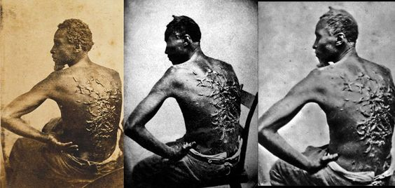 """Three different photographs of Peter, a slave from Baton Rouge, Louisiana, ca. 1863. The scars are a result of a whipping by his overseer Artayou Carrier, who was subsequently fired by the master. It took two months to recover from the beating. These photographs were widely distributed in the North during the war. Also called """"Gordon"""", Peter later enlisted in the Union Army.: Civil Wars, African Americans, Blackhistory, Peter O'Toole, American History, Whipped Slave, Baton Rouge, Black History"""