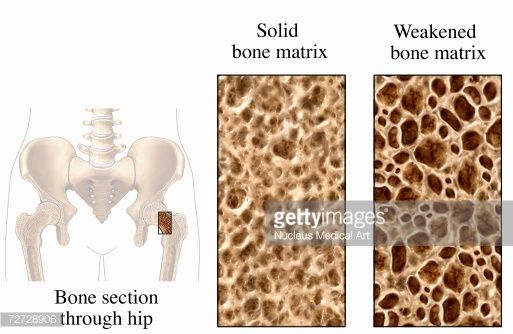 The latter condition illustrates a weakened bone matrix, with decreased cortical thickness and a decrease in the number and size of the trabeculae of cancellous bone .
