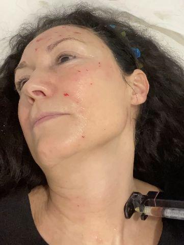 Mayte Martínez recibiendo un tratamiento de plasma rico en plaquetas