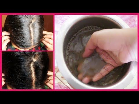 لانبات الشعر في مقدمة الراس بسرعة ضعيها على الفراغات والنتيجة مبهرة تعالج الصلع والتساقط والشيب Youtube Cotton Candy Machine Candy Machine Cotton Candy