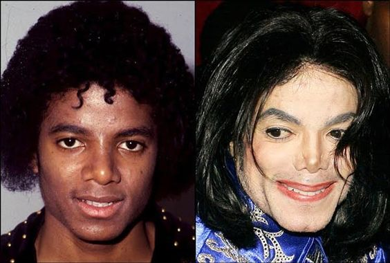 Michael Jackson Plastic Surgery Gone Wrong – Before & After Pictures