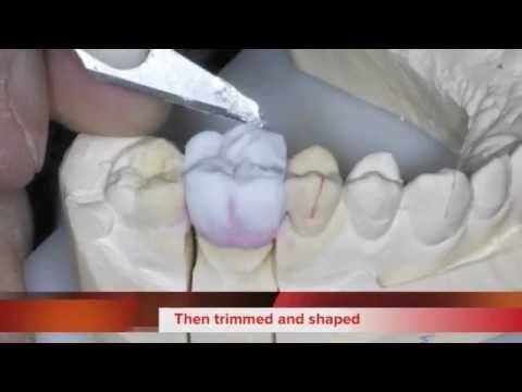 Find Out More About The Advantages And Disadvantages Of Zirconium Crowns How Much Do They Cost What Is The Procedure Like Make It Yourself Rdh Dental