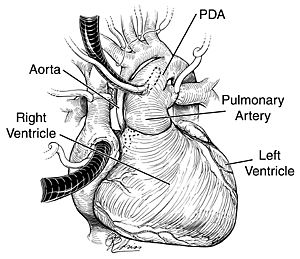 Basics about Congenital Heart Defects