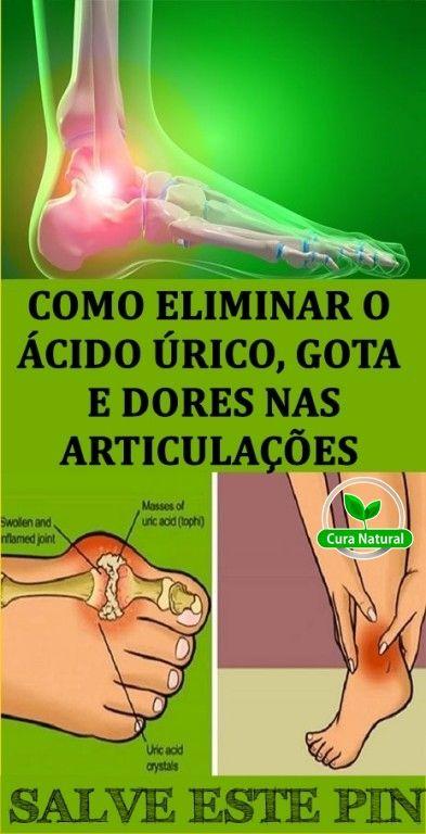 Como Diminuir O Acido Urico Do Corpo Acido Urico Dores Nas