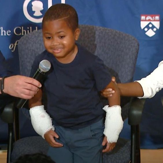Lost hands 2 infection Boy gets DOUBLE HAND TRANSPLANT http://ift.tt/1CeNjph #PvtNews