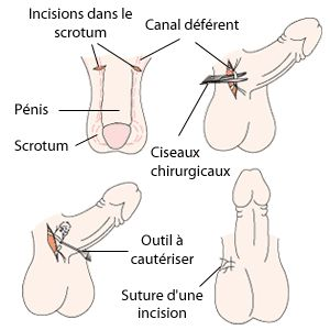 female condom nuvaring